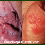 sintomas-del-herpes-genital-en-hombres-y-mujeres-1.