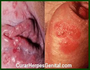 Fotos sobre el herpes genital femenino 25