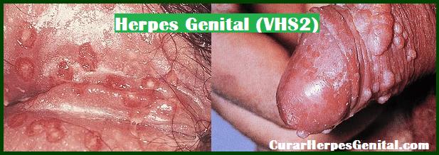 tratamiento-para-herpes-super-efectivo-2018