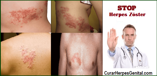 culebrilla-que-es-causas-sintomas-y-como-se-cura-la-culebrilla-naturalmente