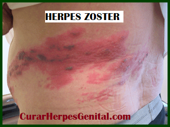 diferencia-ente-herpes-y-espinillas-1