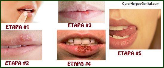 herpes-labial-etapas-cuales-son-y-como-tratarlas-2