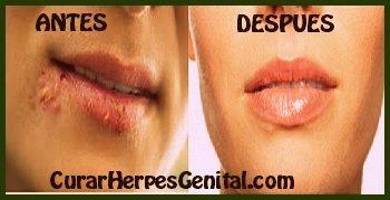 como-eliminar-herpes-en-la-boca
